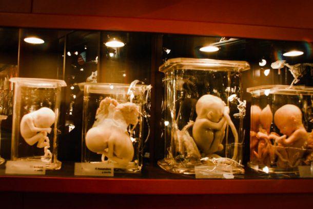 Foetuses in Museum Vrolik for weird museums Amsterdam